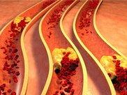 """这四种肝病""""克星"""",每天吃一点,修复肝细胞,远离肝炎!"""