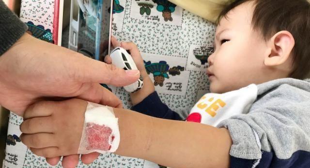 孩子发烧这一退烧方法千万别用,尤其是小于2岁的宝宝,伤害太大