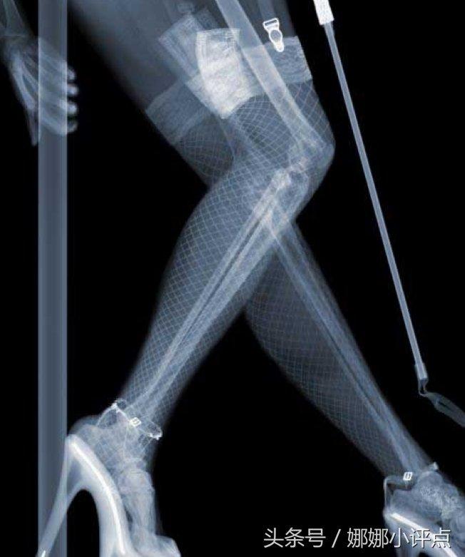 X美女下的人体,机关只有,一览无余单位骨架射线图片