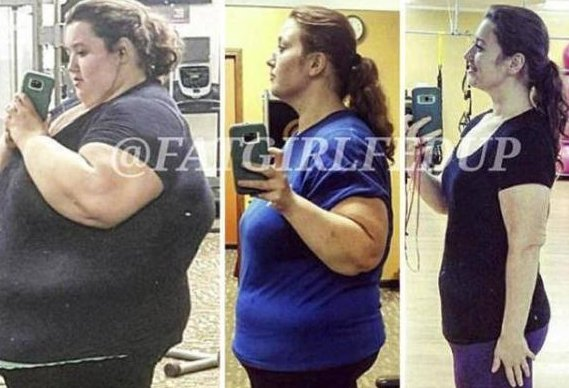 美国瘦腿女子440斤,胖到行走无法,a瘦腿睡眠24减肥袜体重图片