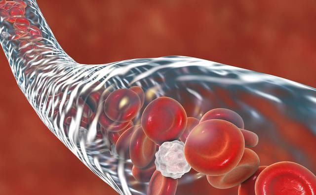 医生提醒:血压高的人,3种食物不要碰,多吃1口,血管多堵1分