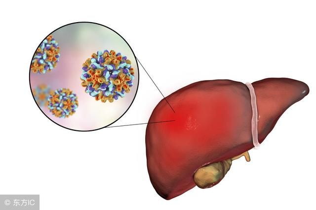 拉米夫定治疗乙肝时有哪些副作用?突然停药副作用非常大