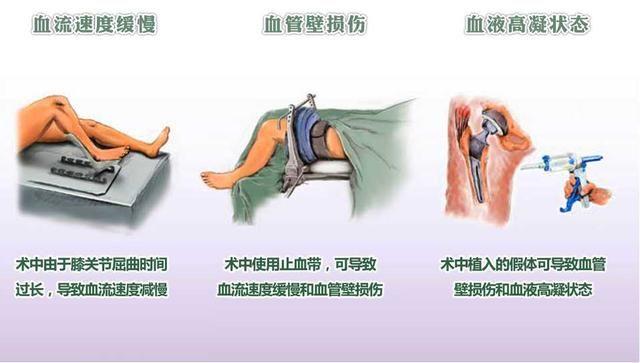 骨科手术为什么高发深静脉栓塞呢?