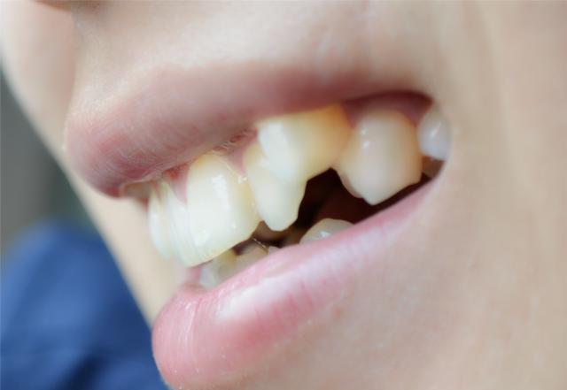 为什么牙齿里会出现牙结石,洗牙有用吗 不妨了解下