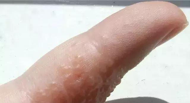 手指长出小水疱,到底是脚气还是汗疱疹?