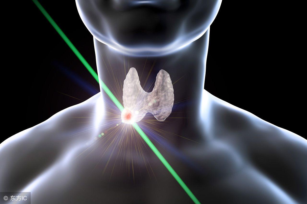 甲状腺结节动完手术图