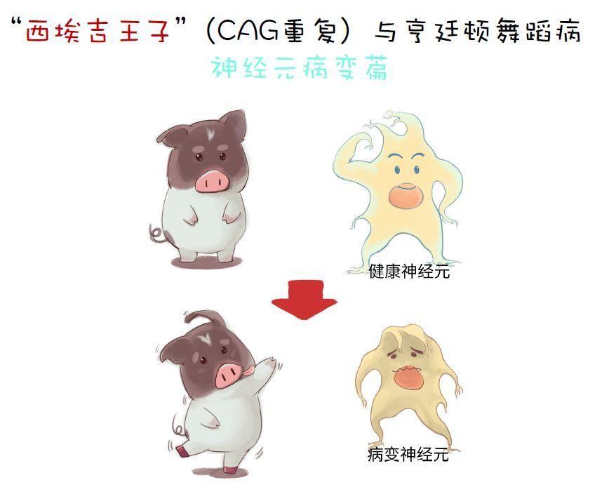 世界首例亨廷顿舞蹈病基因敲入猪在中国诞生!