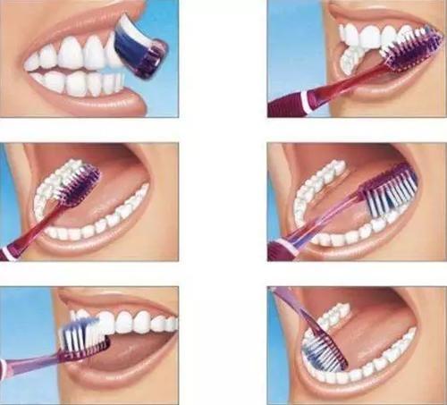 Vsmile声波电动牙刷与传统牙刷,哪个清洁口腔更能彻底?