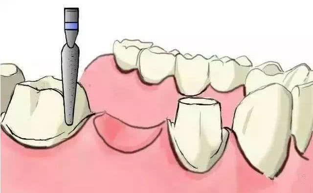 种植牙的过程原来是这样的!有图有真相