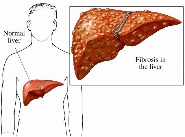 肝功能檢查能查出腎虛嗎