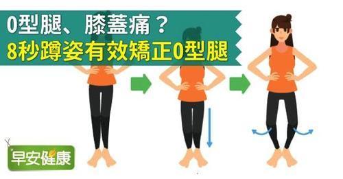 O型腿、膝盖痛?8秒蹲姿有效矫正O型腿