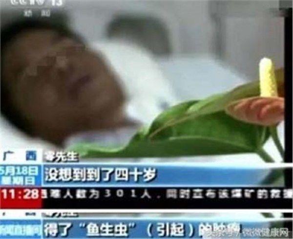 中国人得肝癌十有八九都是因吃它,还不戒掉,下一个就找上你插图(1)