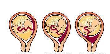 前置胎盘不可不知,可能带来的3个麻烦,原因及预防方法要知道
