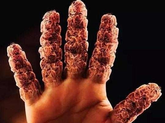 高尿酸已经成为普遍的病了, 你对它又了解多少