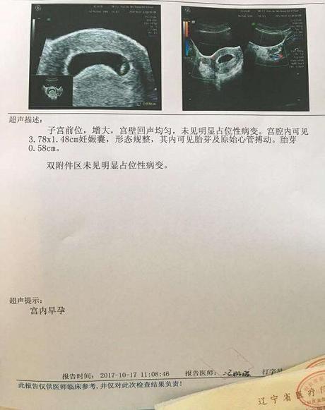 多囊治疗到怀孕历程分享,热乎乎的胎芽胎心传